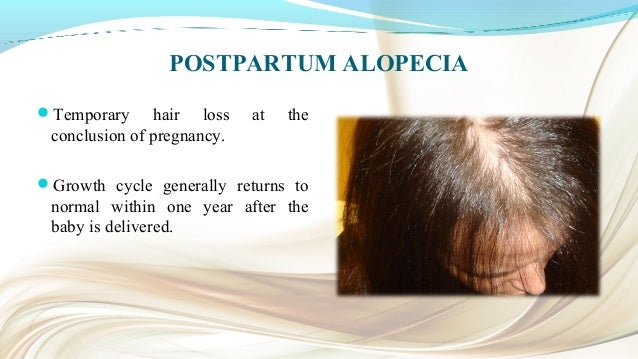 TRICHOTILLOMANIA Defined as a self-induced and recurrent loss of hair. It includes the criterion of an increasing sense of...