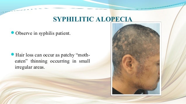 CONCLUSION Alopecia cannot be cured totally. Treatment is a very lengthy. Researches are going on to invent a way to cu...