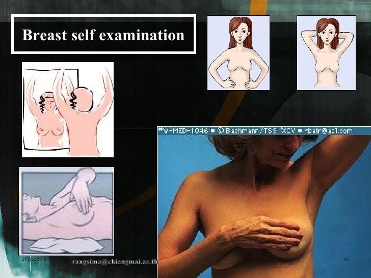 Breast self examination27 Dec 2010               18