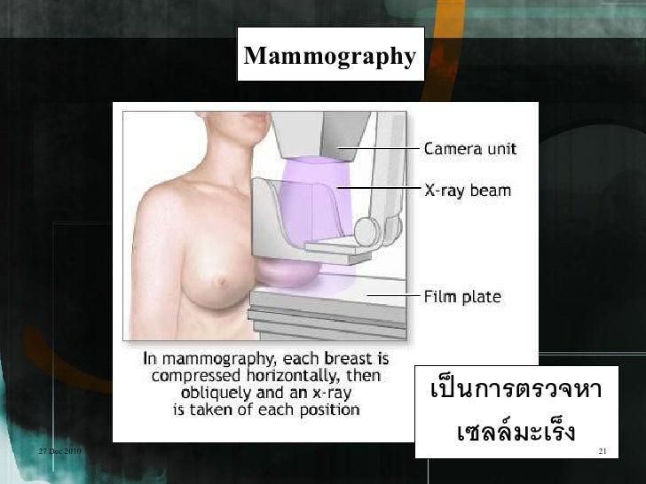 Mammography                            เป็ นการตรวจหา27 Dec 2010                                เซลล์ มะเร็ง              ...