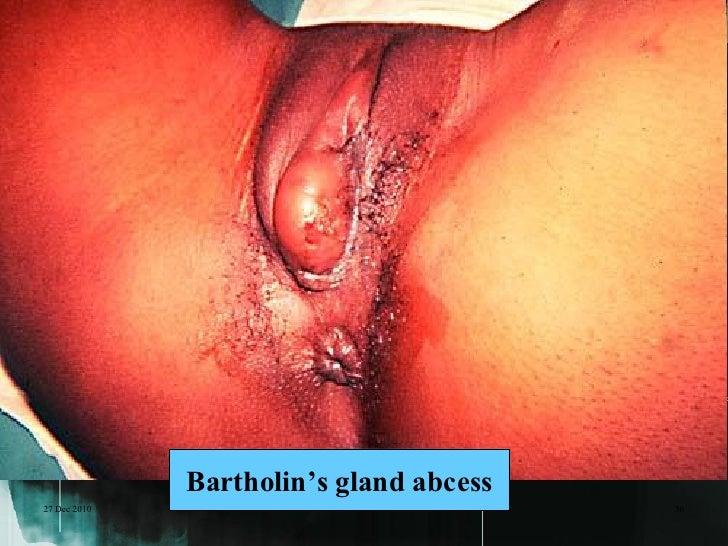 27 Dec 2010              Bartholin's gland abcess   36