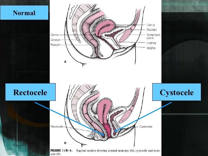NormalRectocele     Cystocele27 Dec 2010           37