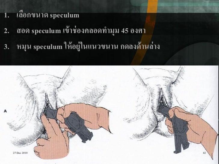 1. เลือกขนาด speculum2. สอด speculum เข้ าช่ องคลอดทามุม 45 องศา3. หมุน speculum ให้ อยู่ในแนวขนาน กดลงด้ านล่ าง  27 Dec ...
