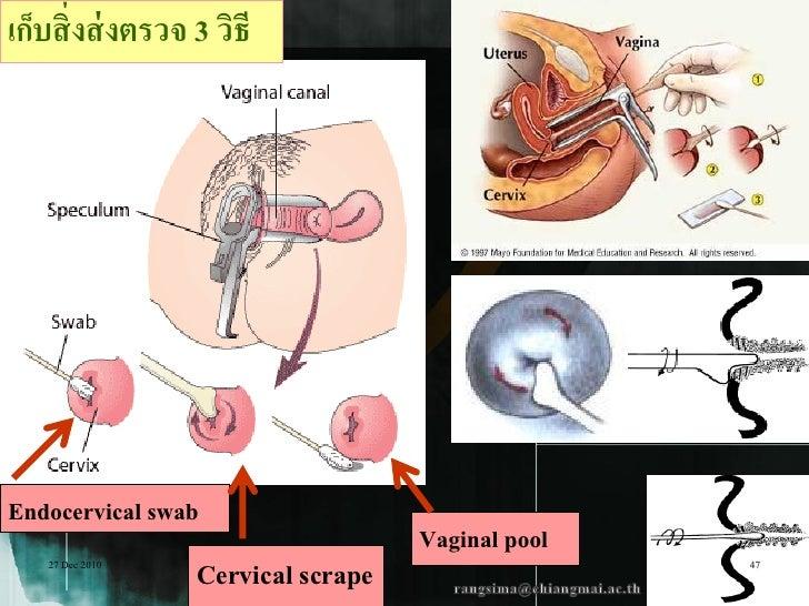 เก็บสิ่ งส่ งตรวจ 3 วิธีEndocervical swab                                    Vaginal pool    27 Dec 2010                  ...