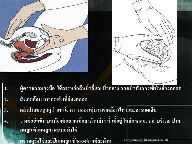 1.         ผู้ตรวจสวมถุงมือ ใช้ สารหล่ อลืนนิวชี้และนิวกลาง สอดนิวทั้งสองเข้ าในช่ องคลอด                                 ...