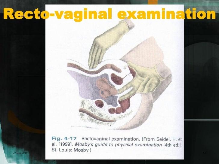 Recto-vaginal examination 27 Dec 2010           52