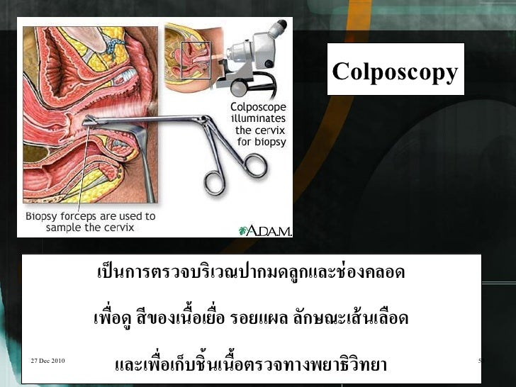 Colposcopy              เป็ นการตรวจบริเวณปากมดลูกและช่ องคลอด              เพือดู สี ของเนือเยือ รอยแผล ลักษณะเส้ นเลือด ...