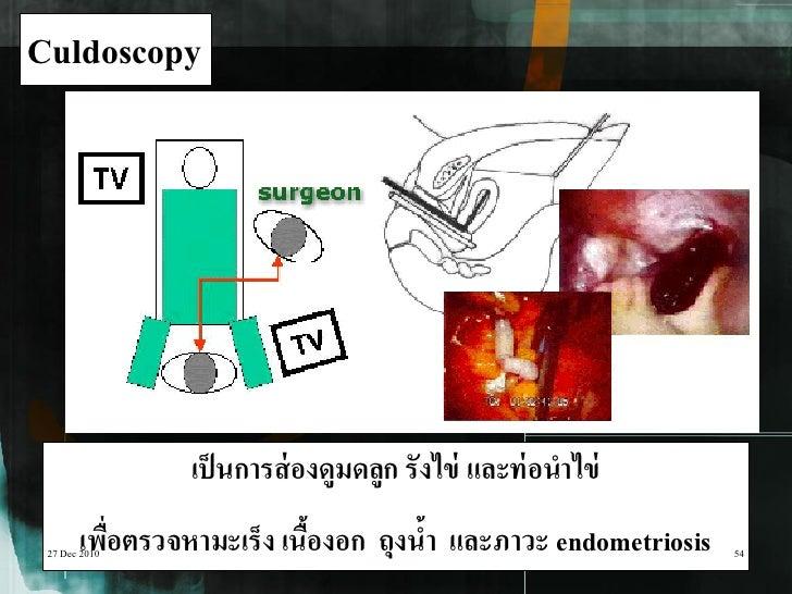 Culdoscopy                เป็ นการส่ องดูมดลูก รังไข่ และท่ อนาไข่       เพือตรวจหามะเร็ง เนืองอก ถุงนา และภาวะ endometrio...