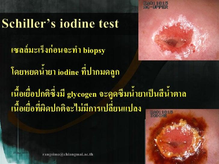 เซลล์ มะเร็งก่ อนจะทา biopsyโดยหยดนายา iodine ทีปากมดลูก       ้            ่เนือเยือปกติซึ่งมี glycogen จะดูดซึมนายาเป็ น...