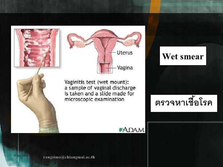 Wet smear              ตรวจหาเชือโรค                       ้27 Dec 2010                57