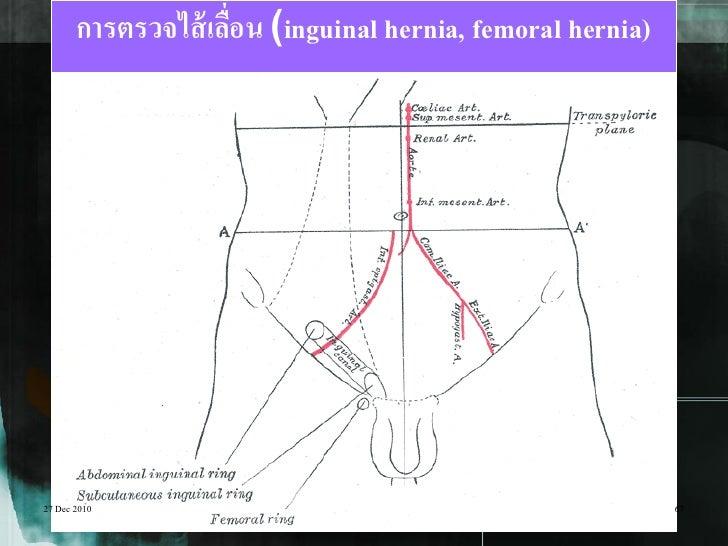 การตรวจไส้ เลือน (inguinal hernia, femoral hernia)                     ่27 Dec 2010                                       ...