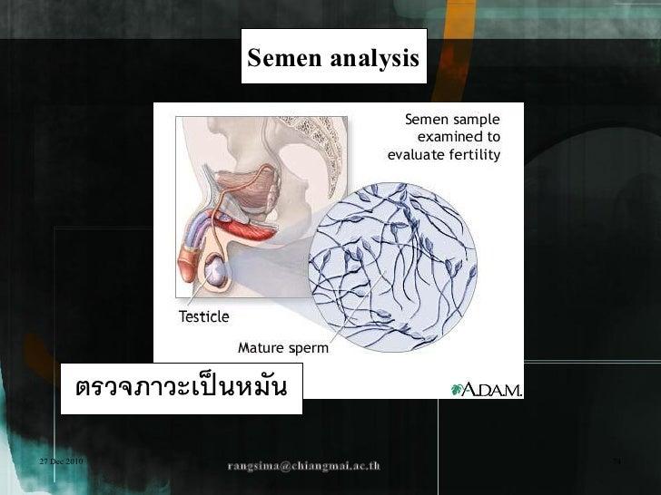 Semen analysis        ตรวจภาวะเป็ นหมัน27 Dec 2010                           74