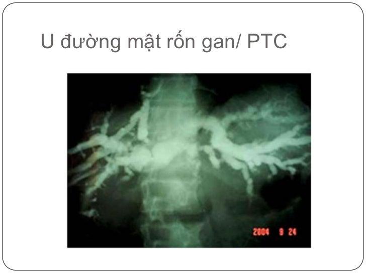 U đường mật rốn gan/ PTC<br />