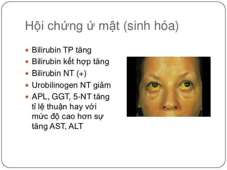 Hội chứng ứ mật (sinh hóa)<br />Bilirubin TP tăng<br />Bilirubin kết hợp tăng<br />Bilirubin NT (+)<br />Urobilinogen NT g...