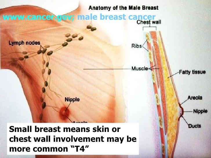Men & Breast Cancer, Dr. Frankie Ann Holmes - 7th Annual Breast Healt…