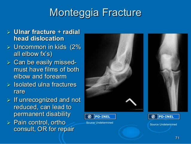 GEMC: Pediatric Orthopedic Emergencies: Resident Training