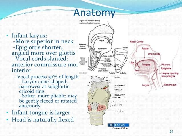 Neonatal airway anatomy