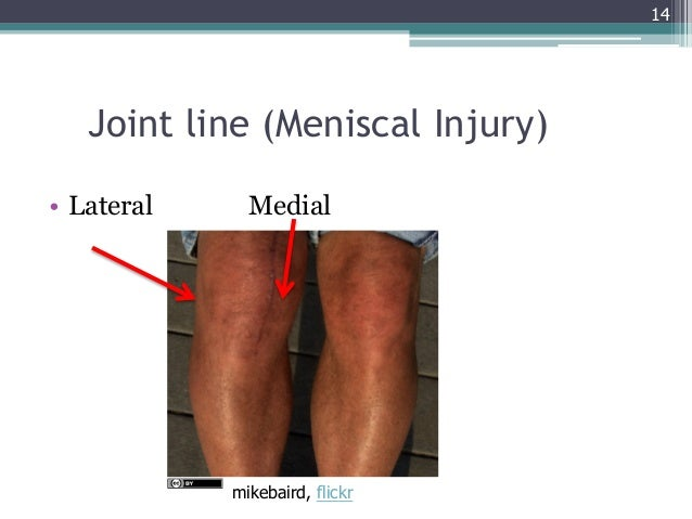 Gemc injuries of the lower extremity knee ankle and foot resident 14 14 joint line ccuart Image collections