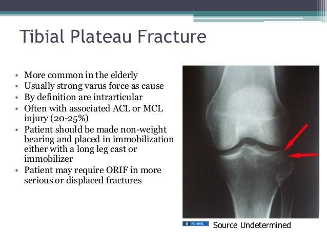 Acl Knee Brace GEMC- Injuries of the ...