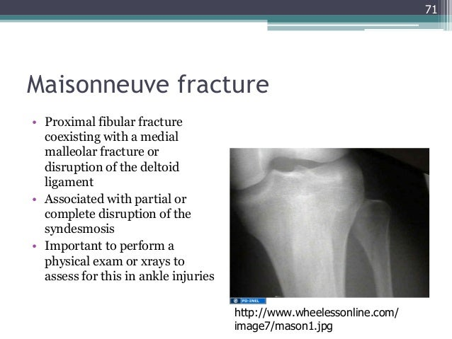 GEMC- Injuries of the Lower Extremity: Knee, Ankle and Foot- Resident…