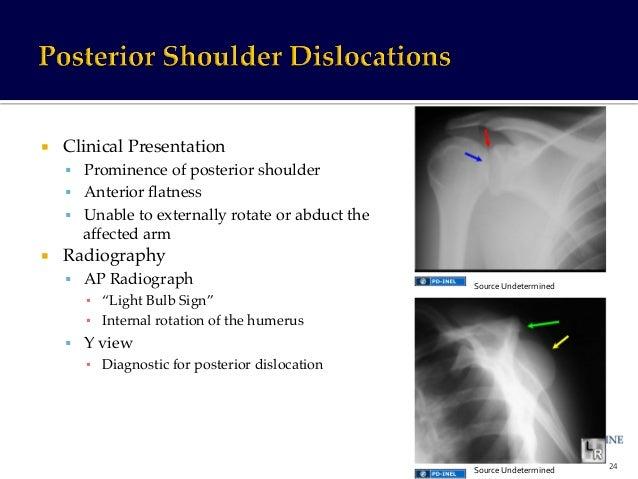 Gemc Upper Extremity Injuries Shoulder Elbow And Wrist