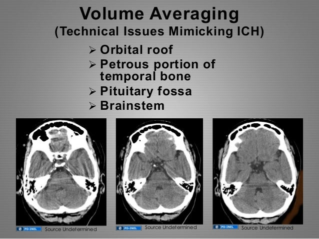 gemc systematic evaluation to nontraumatic head cts