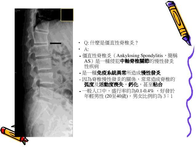 發炎性關節炎  類風濕性關節炎和僵直性脊椎炎 20120223 1.2