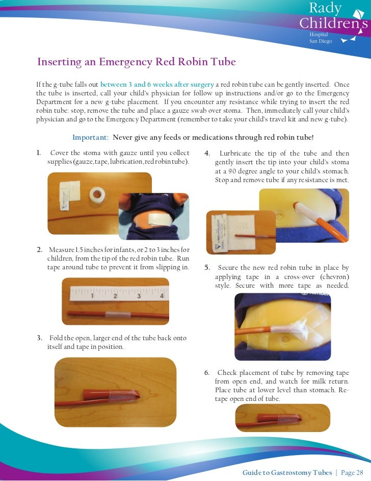 g tube feeding instructions