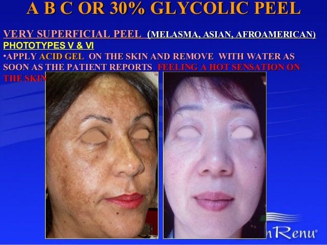 A B C OR 30% GLYCOLIC PEELVERY SUPERFICIAL PEEL (MELASMA, ASIAN, AFROAMERICAN)PHOTOTYPES V & VI•APPLY ACID GEL ON THE SKIN...