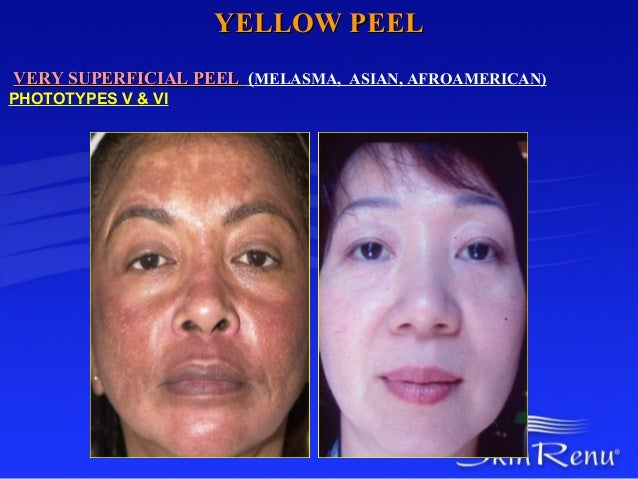YELLOW PEELVERY SUPERFICIAL PEEL (MELASMA, ASIAN, AFROAMERICAN)PHOTOTYPES V & VI