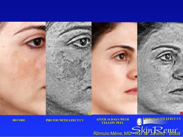 PHOTOS WITH EFECT UV    AFTER 14 DAYS WITH    PHOTOS WITH EFECT UVBEFORE                                    YELLOW PEEL   ...