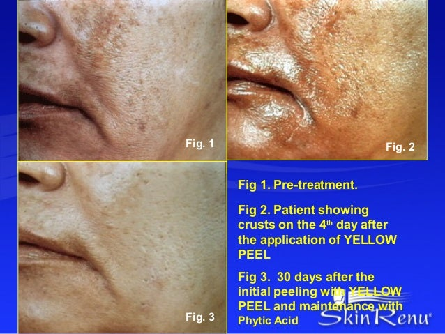 Fig. 1                            Fig. 2         Fig 1. Pre-treatment.         Fig 2. Patient showing         crusts on th...