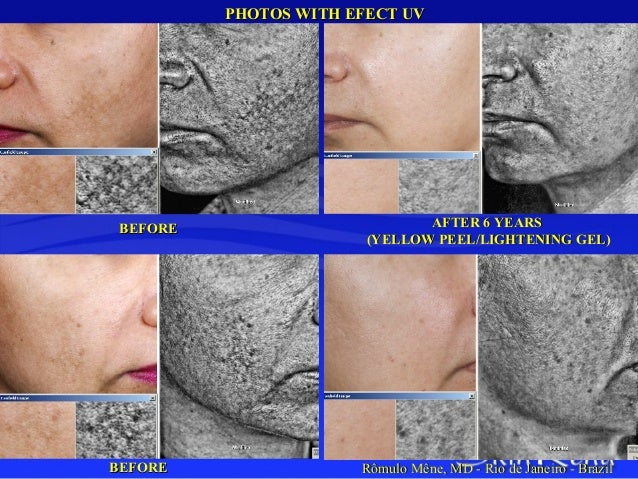 Understanding Hyperpigmentation and Treating with Combined Strategies…