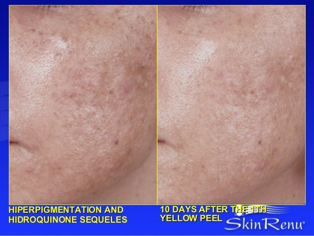 HIPERPIGMENTATION AND   10 DAYS AFTER THE 1THHIDROQUINONE SEQUELES   YELLOW PEEL