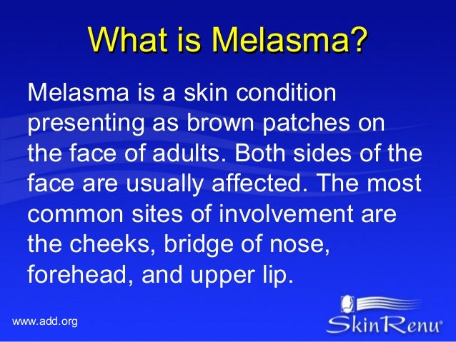 What is Melasma?  Melasma is a skin condition  presenting as brown patches on  the face of adults. Both sides of the  face...