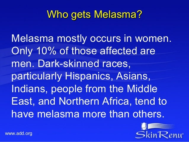 Who gets Melasma?  Melasma mostly occurs in women.  Only 10% of those affected are  men. Dark-skinned races,  particularly...