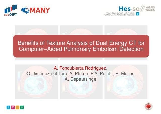 Benefits of Texture Analysis of Dual Energy CT for Computer–Aided Pulmonary Embolism Detection A. Foncubierta Rodríguez, O...
