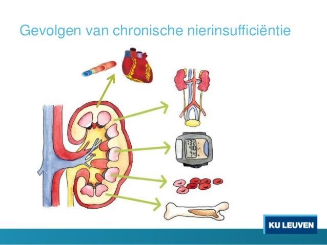 symptomen nierinsufficiëntie