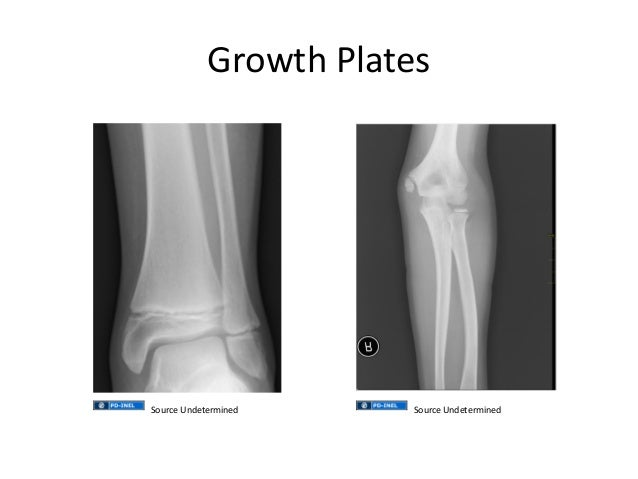 how to keep growth plates open