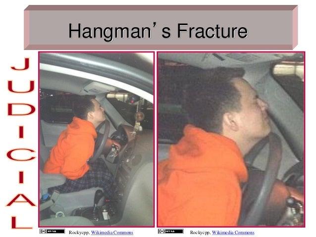 Auto erotic strangulation