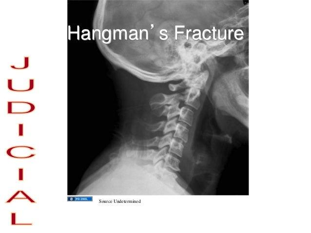 Hangman's Fracture Source Undetermined