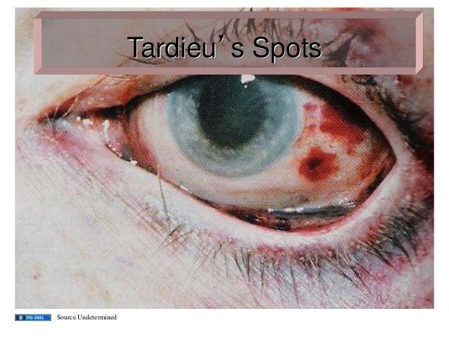 Tardieu's Spots Source Undetermined