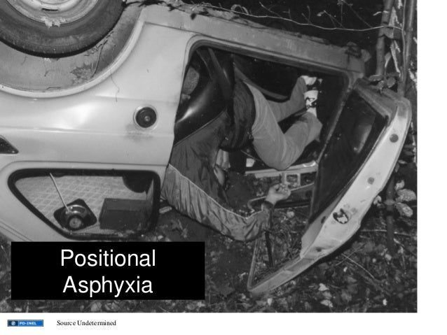 Positional Asphyxia Source Undetermined