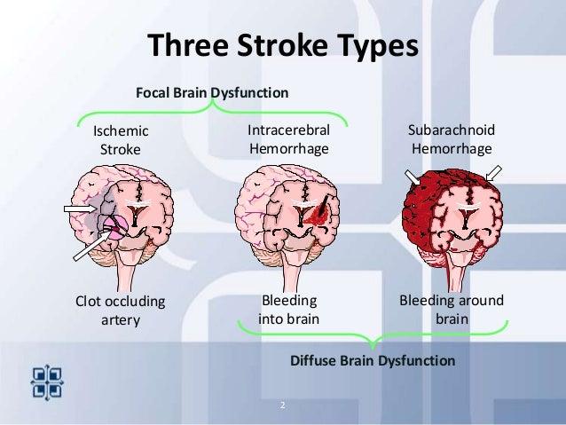 2013stroke Areyouready on Types Of Brain Bleeds