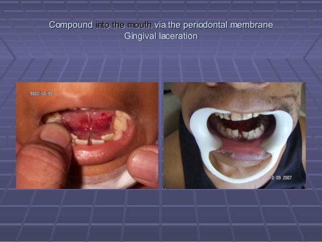 Fracture of the Mandible on quiet mouth, you have a purdy mouth, profanity mouth, smiley mouth,