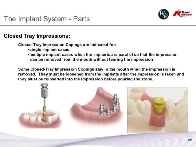 2013 implant restorative overview