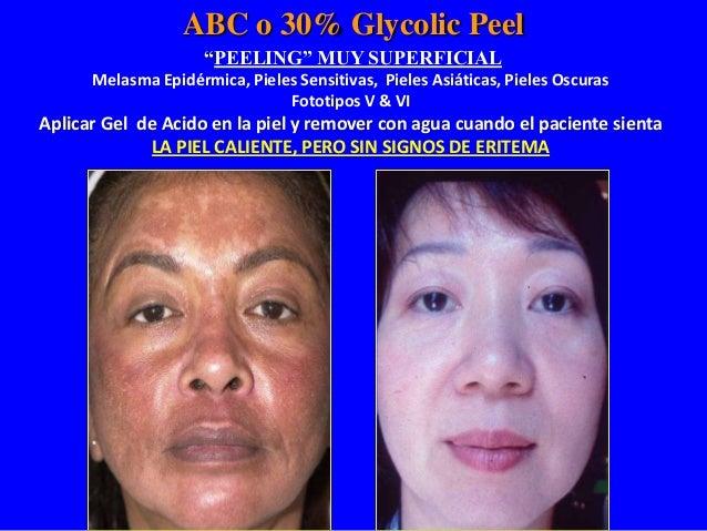 ABC or 30% Glycolic Peel POST PEEL PHASE Si éste es el final de la fase estimulante (aplicación de gel) y no se aplicará e...