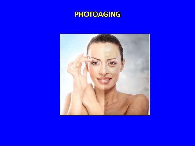 PHOTOAGING  Disminución del flujo sanguíneo