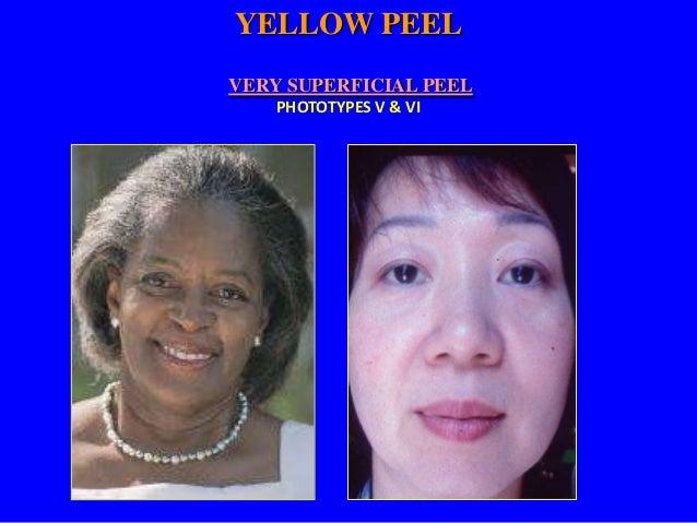 Tratamiento Profesional Fototipos V & VI Envejecimiento Inicial  Arrugas Superficiales  Yellow Peel 4-6 Tratamientos 4-6 M...