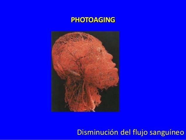 PHOTOAGING  Arrugas y daños en elastina y colágeno